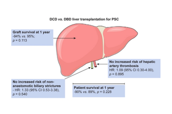 DCD v DBD livers Trivedi