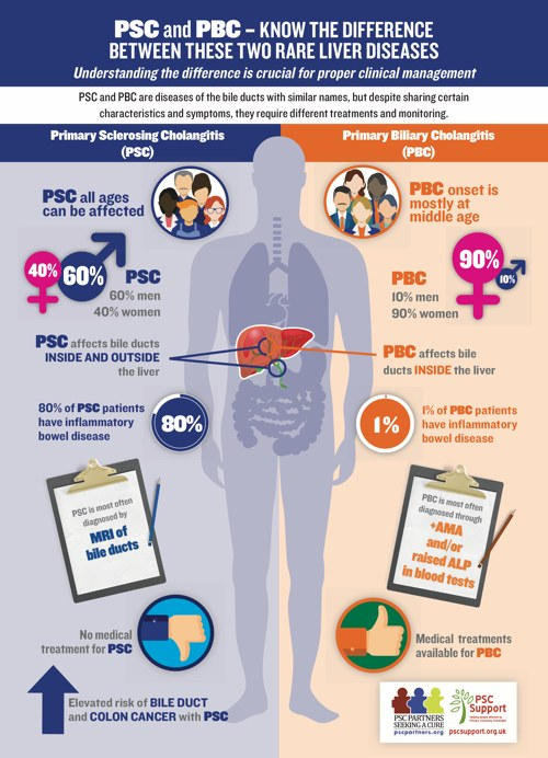 PSC and PBC Differences Infographic